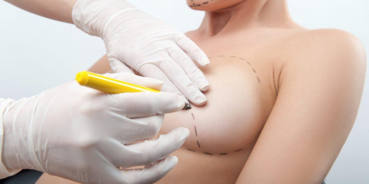 Comment se déroule l'augmentation mammaire ?